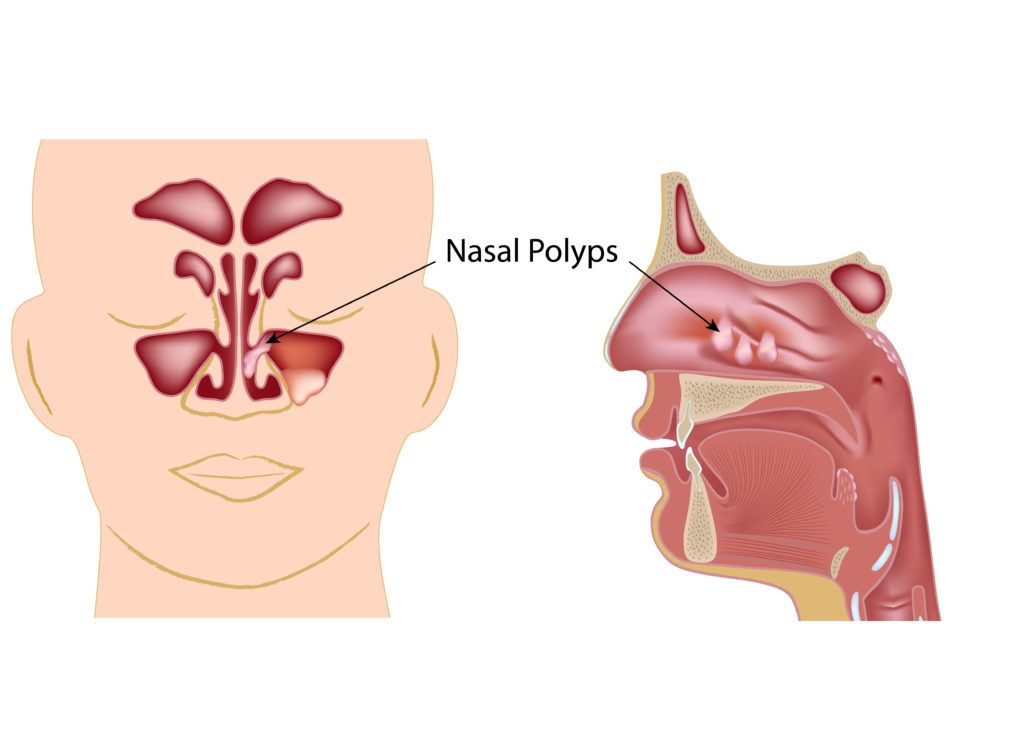 illustration of nasal polyps in the sinuses